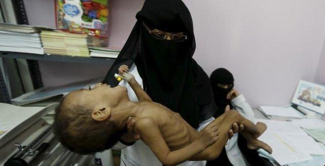 سازمان ملل: در جنگ با گرسنگی در یمن شکست خوردیم