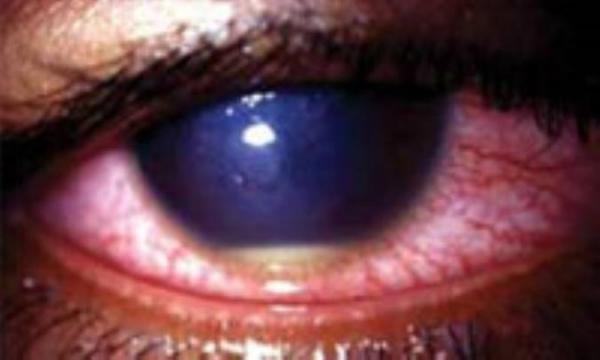 التهاب قرنیه (کراتیت )